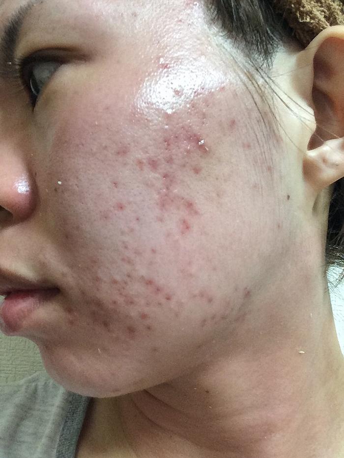 施術直後:ニキビ・ニキビ痕に悩むお肌