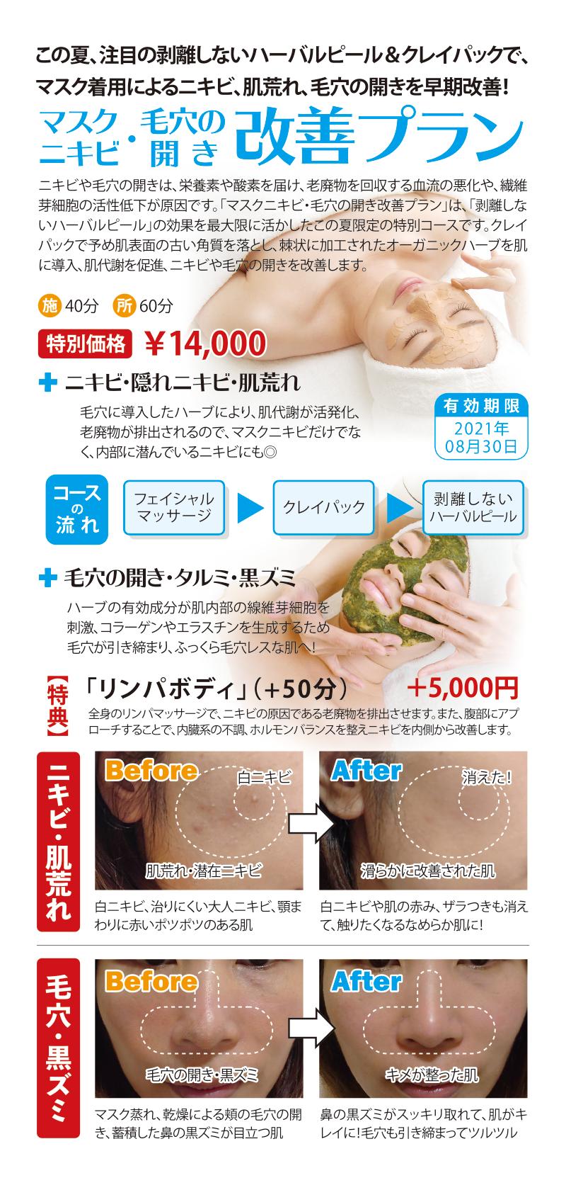 「マスクニキビ・毛穴の開き改善プラン」