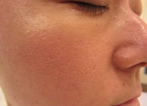 施術前:毛穴の開きやタルミ、法令線でお悩みのお肌