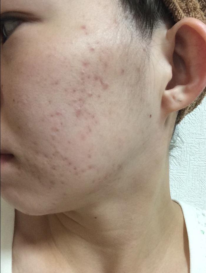 5日後:皮膚が生まれ変わりニキビ・ニキビ痕がかなり改善されたお肌
