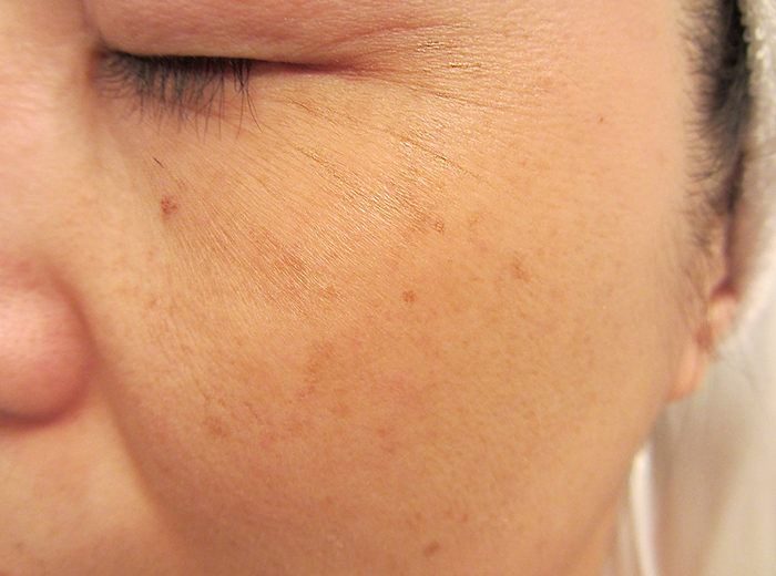 施術前:目元の小ジワ、頬のシミが気になる40代の女性のお肌